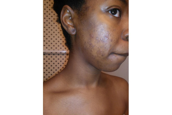 Acne Scarring Before Repair